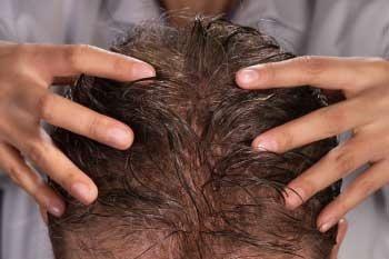 Integración de cabello sin cirugía