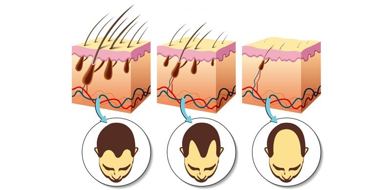 la caida del cabello en las distintas etapas de la vida