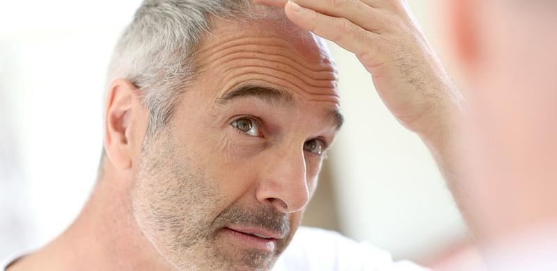 Métodos para prevenir, controlar y tratar la calvicie
