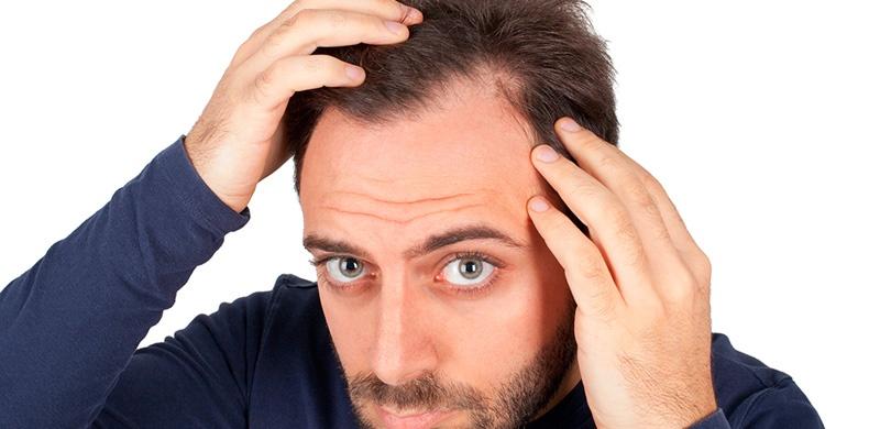 3 soluciones efectivas en el tratamiento para la calvicie