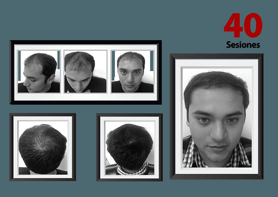 Detener caída cabello